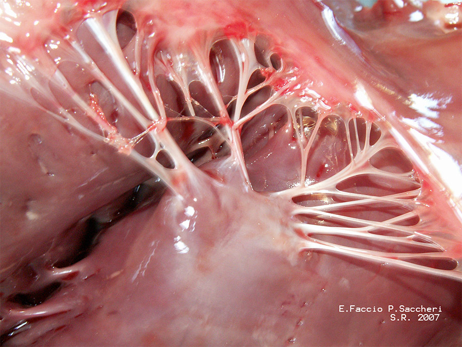 Chordae tendineae inside your heart